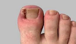 Лечение вростающего ногтя